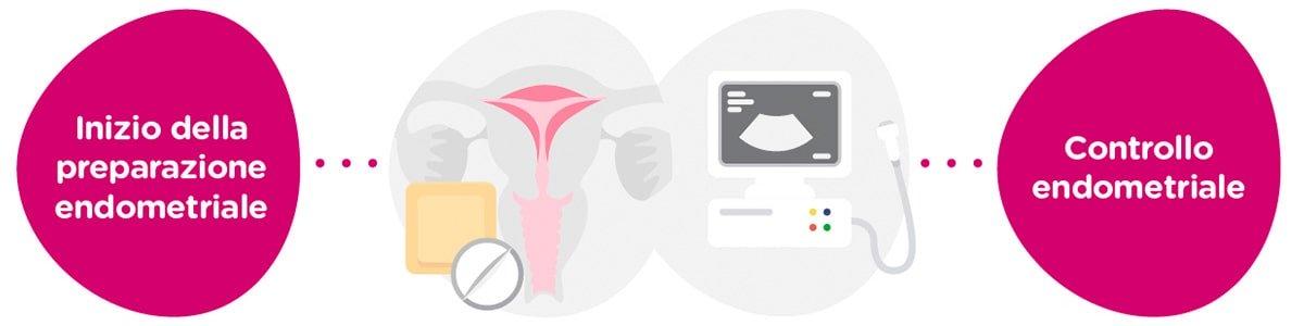 Preparazione endometriale + controlli ginecologici