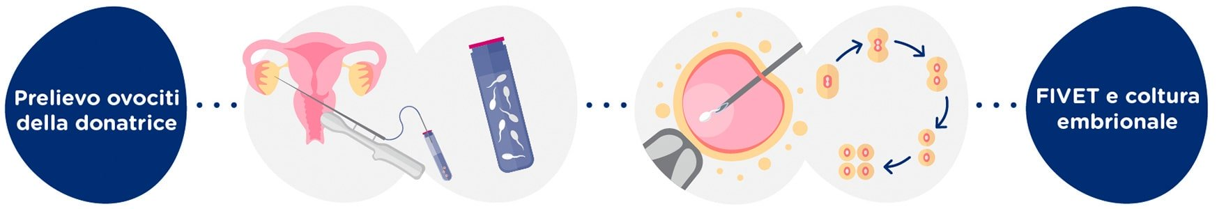 Prelievo ovociti della donatrice + campione di sperma<br>Fecondazione <i>in Vitro</i> + embrioni in coltura 5 giorni