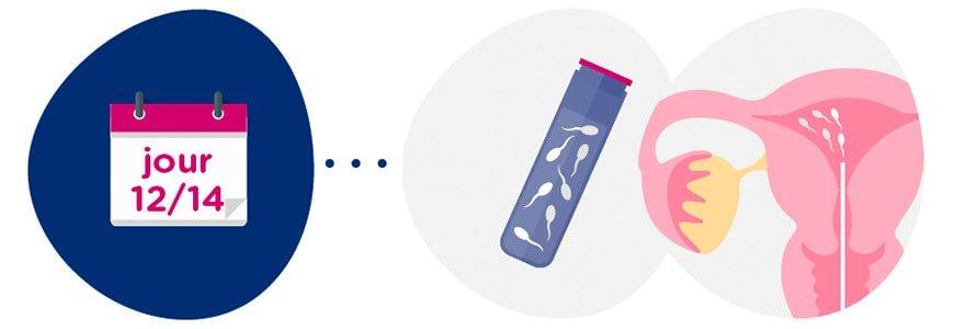 Préparation de l'échantillon de sperme + insémination