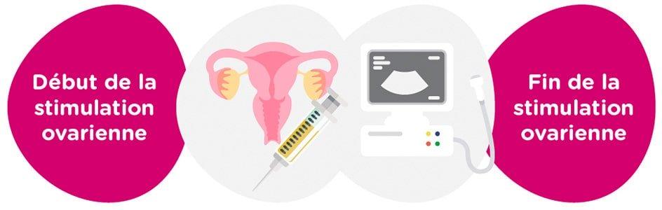 Stimulation ovarienne<br> + examens gynécologiques