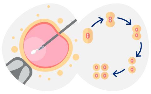<i>In Vitro</i> fertilisation + embryo culture