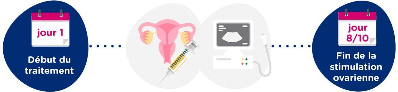 Stimulation ovarienne + examens gynécologiques