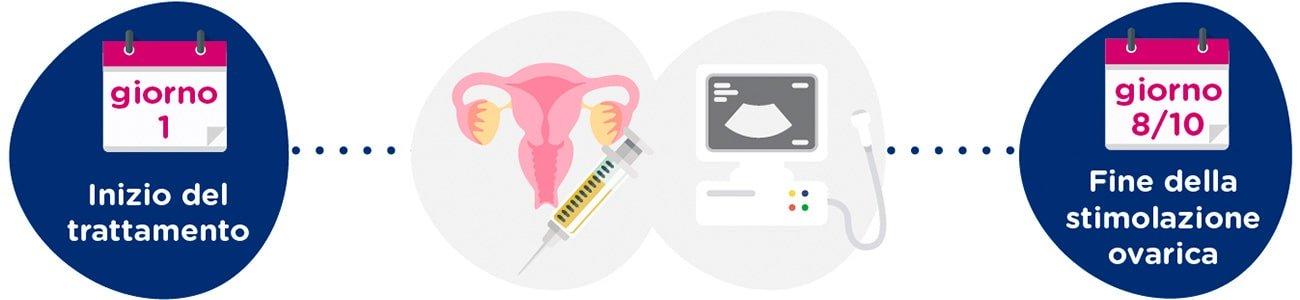 Stimolazione ovarica + controlli ginecologici