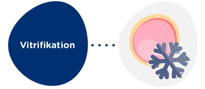 Vitrifikation der Eizellen