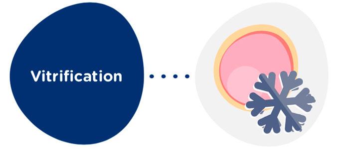 Vitrification des ovocytes