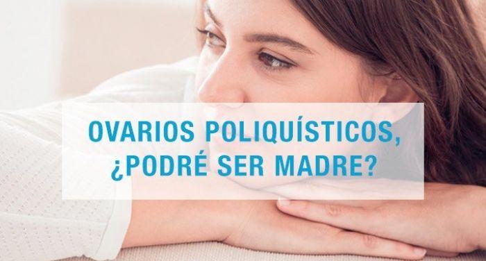 Ovarios poliquísticos: Síntomas y tratamiento