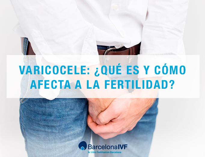 Soluciones para lograr el embarazo si se padece varicocele.