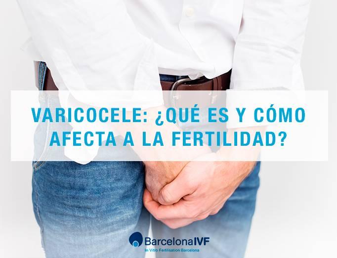 ¿El varicocele siempre afecta la fertilidad?