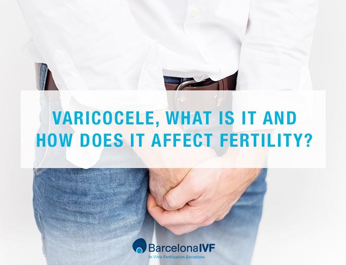 Varicocele: how does it affect fertility?